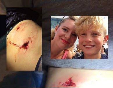 Hilde-Marlen Wåhlberg er oppgitt over hundeeieren som gikk videre etter at hunden hans hadde angrepet hennes åtte år gamle sønn Noa. Bildet av Noa sammen med mamma er fra tidligere.
