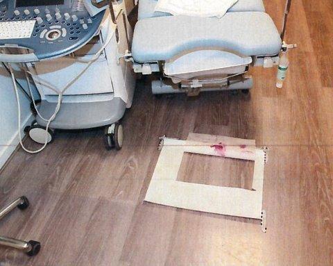 BENKEN: På denne gynekologbenken er sju kvinner ifølge dommen blitt seksuelt misbrukt. Foto: Politiet