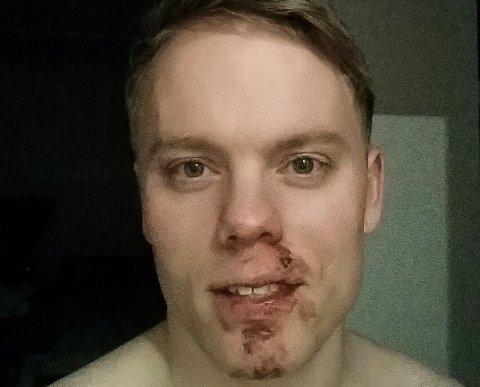 BLODIG: Dette bildet ble tatt av Martin Hovin etter at han kom hjem torsdag kveld. I tillegg til blodig ansikt, gikk han blåmerker på ribbeina.