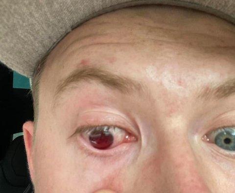 – Det var som å bli skutt i øyet med paintball, sier Bredeveien om smertene.