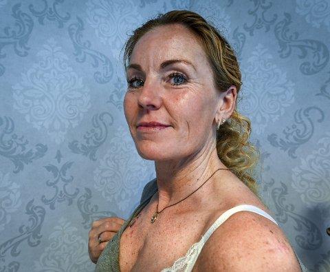 Eva Eggesvik Jensen (42) har fjernet hudknuter flere steder på kroppen, og det er påvist basalcellekreft i alle. Før hun fikk diagnosen i mars i år, var denne kreftformen ukjent for henne. Foto: Øyvind Bratt