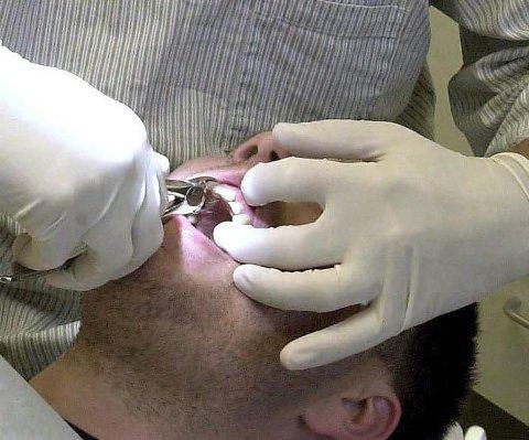 HULL: Nordlandsk tannhelse er dessverre ikke i norgestoppen.