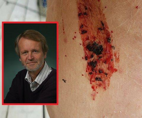 Tuneflueforsker Åge Brabrand håper å unngå så ekstreme tuneflueår som i år. Bildet i bakgrunnen er en legg som har hatt et uheldig møte med flua.