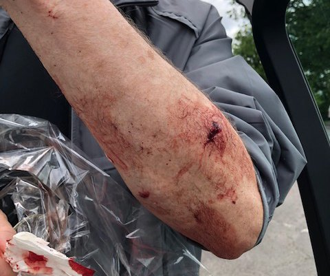 Slik så armen til Terje Samuelsen ut etter at han ble bitt av en hund mens han var ute og gikk søndagstur med sin kone.
