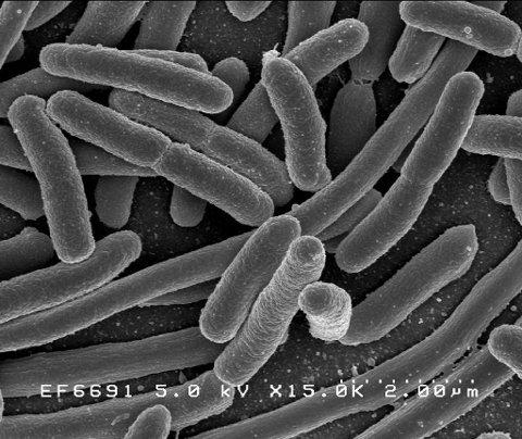 Escherichia coli. Foto: National Institutes of Health.