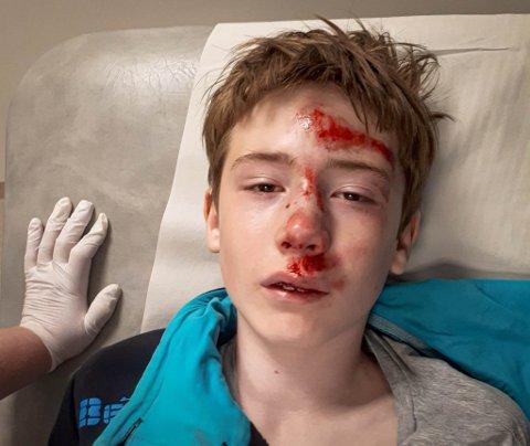 BLOD: Både Sander og sykkelen var fullt av blod etter hendelsen. Men tross alt gikk dette heldigvis bra, sier mamma Ann-Sølvi.