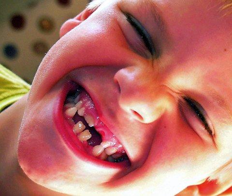 Godt smil: God tannhelse begynner i barndommen, økonomi må ikke bidra til at noen opprettholder et sett gode tenner, og andre ikke.