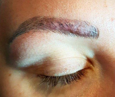 ARR: Slik ser Malene Sire ut i dag, måneder etter at hevelsen på øyebrynet hennes skulle vært borte.