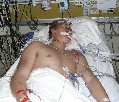 PÅ SYKEHUS: Fra Ullevål sykehus. Her ligger han i koma med pustemaskin i munnen og sensor i hodet som målte trykket på hjernen.