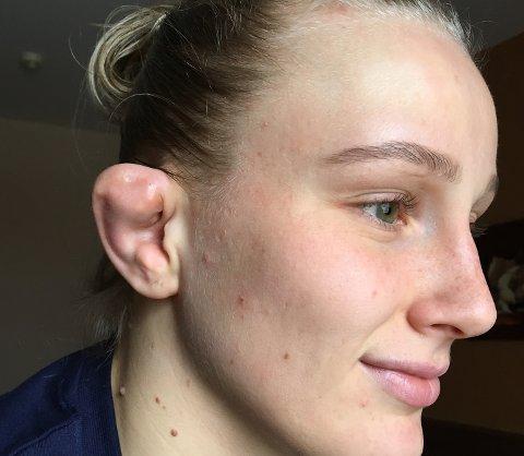BLOMKÅLØRE: Iselin Moen Solheim med solid blomkåløre etter EM i Romania. Det ble til slutt en femteplass i mesterskapet.