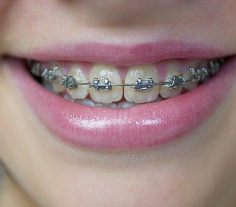 Tallene viser at rundt halvparten av barn og unge født like etter 2000, har fått tannregulering.
