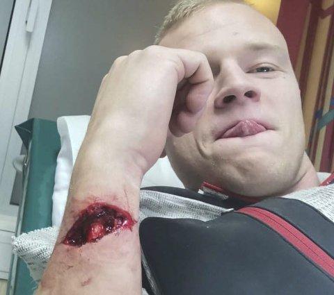 Slik så det ut etter at Rana Fks Olav Ekroll Hauknes hadde skåret opp armen. Torsdag ble han operert på UNN Tromsø.
