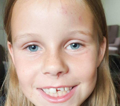 SYKLET RETT NED: Åtte år gamle Thea Lærum-Jansen ble lørdag syklet rett ned. En etterlysning på Facebook gjorde at det man tror er gjerningsmannen blir politianmeldt på mandag.