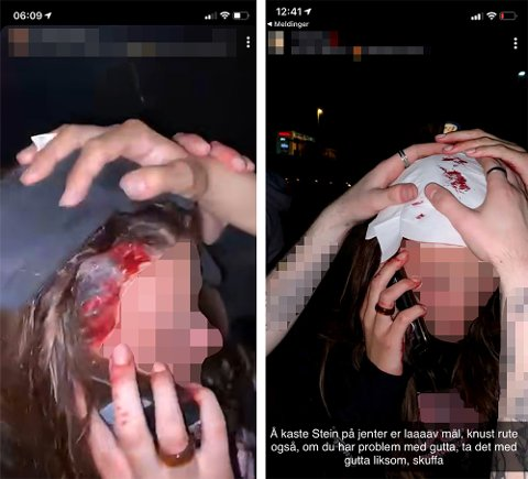 KUTT I HODET: Ei jente skal ha blitt truffet av en stein i hodet, etter at den ble kastet gjennom ruta på russebussen hun var i.