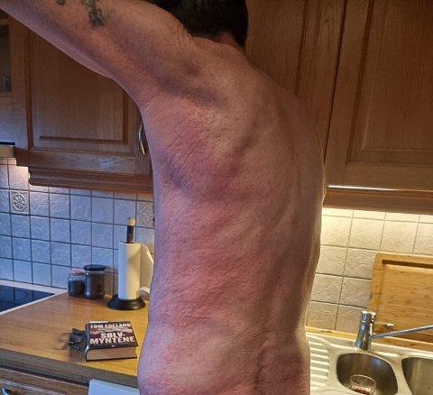 BLEMMER: Lars Ytreland ble dekket i rødt utslett.