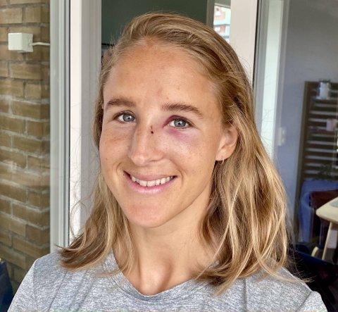 FORSLÅTT: - Jeg ser mye bedre ut i dag, men fortsatt kan folk lure på om jeg har vært i slåsskamp, sier HBK-spilleren Emilie Nøkleby Finnevolden etter søndagens røffe møte med fotballdommeren i kampen mot Medkila.