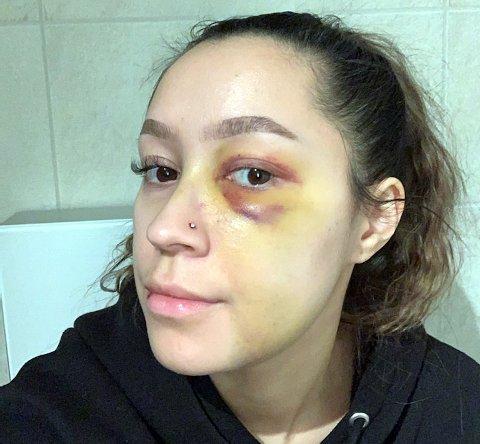 TRE BRUDD: Jeanette Teigen Bjørn har fått påvist tre brudd i ansiktet i etterkant av voldshendelsen på Lyngseidet natt til 27. desember. Nyttårsaften skal hun få korrigert de to nesebruddene.