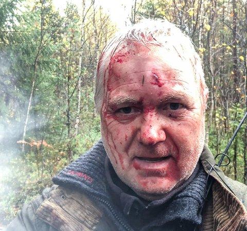 Selfie: Trond hadde tilstrekkelig sinnsro til å ta dette bildet av seg selv etter det blodige basketaket med den dødelig sårede elgen.
