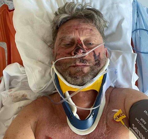 Uheldige Bjørkli: Reidar Bjørkli brakk nakken under årets Birkebeinerritt. 59-åringen tok kontakt med rittledelsen få dager etter ulykken. Tranbymannen mener løypa har blitt for farlig for supermosjonistene.