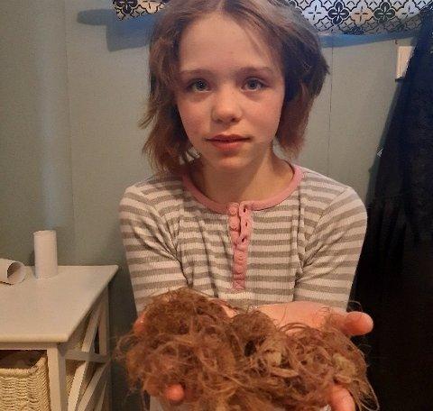 Håret til Emma falt av i store klaser etter å ha påført det hun trodde var balsam.