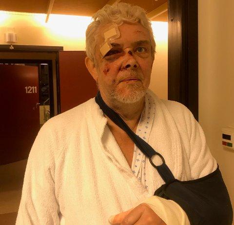 PÅ SYKEHUSET: Etter fallet på sykkelen sist lørdag er Sverre Søvik fortsatt på sykehuset.