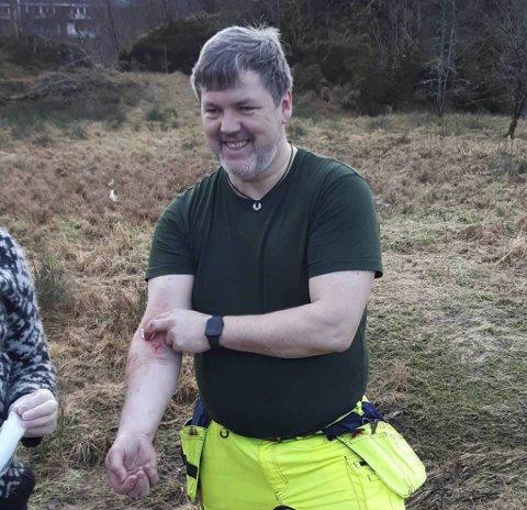 Sverre Øgaard løp til for å redde hjorten som satt fast, og ble selv skadet i basketaket.