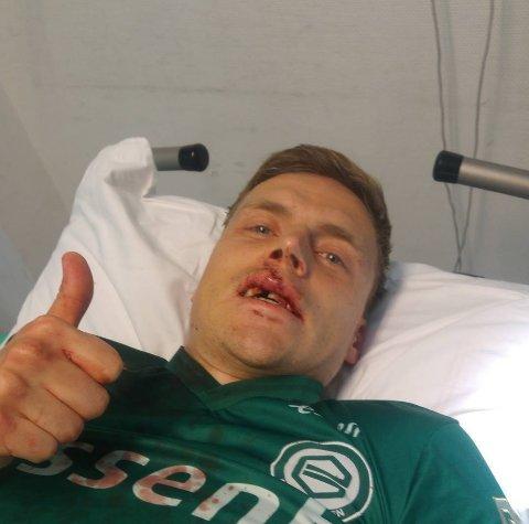 TOMMEL OPP: Slik så Ruben Yttergård Jenssen ut etter at Europa-drømmen brast lørdag kveld. Han sydde 15 sting, og mangler en tann etter sesongens siste kamp.
