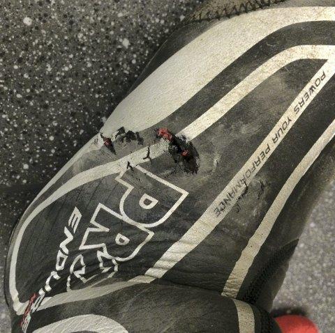RESULTAT: Ødelagte sykkelklær og blodige sår. Privatfoto