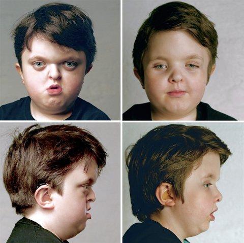 Før- og etterbilder av Elias: – Her bygde de fram hele ansiktet tre centimeter, et unikt resultat i verden, kommenterer far.