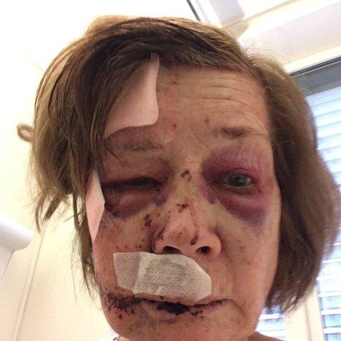 BLE PÅKJØRT: Slik så Anne (69) ut etter sammenstøtet med elsparkesykkelen i fjor høst. Mandag ble føreren dømt til 18 dagers fengsel og inndragning av førerkortet.