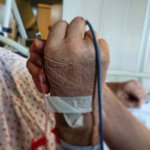 Sønnen Anders Backe delte dette bildet fra sykehuset på sosiale medier. Bildet er gjengitt med tillatelse.