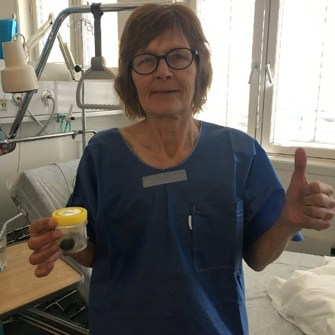 Etter operasjonen ble gallesteinen som ble operert ut lagt på et glass. - Den har ligget og gnisset og gitt meg kroniske smerter, sier Blåhella.