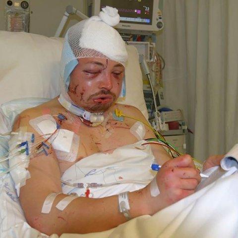 ANGREPET: Spike Reid var en av fire som ble angrepet av isbjørn på Svalbard 5. august 2011. Han fikk omfattende hodeskader i angrepet.