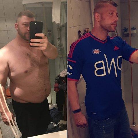 FORSKJELL: Glenn Mathisen har gått gjennom en stor forandring siden han tok en slankeoperasjon i 2017.