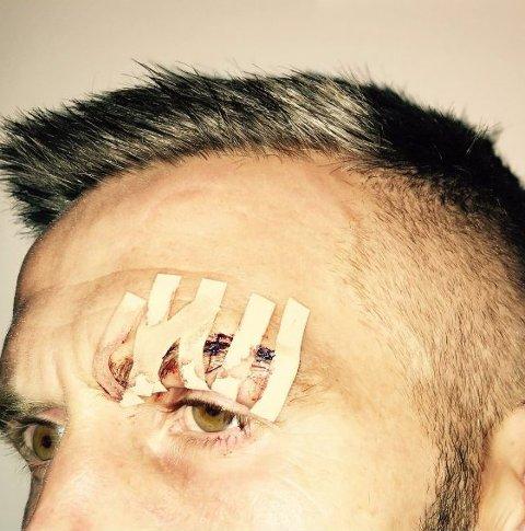 DAGEN DERPÅ: Slik ser midtstopparen for Sogndal ut dagen derpå. «Seks sting og eit forbanna tap... Taktisk smart av LSK-benken å seie at «Dette kan han ikkje fortsetje med», skriv Wæhler på Twitter etter skaden.