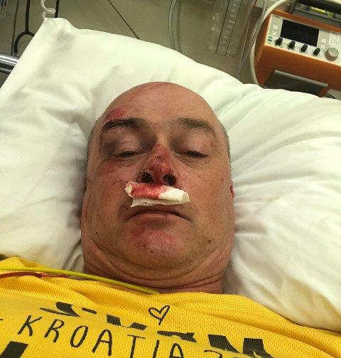 VELTA: Knut Røneid hamna på sjukehus etter ein sykkelvelt i Gaupne tysdag.