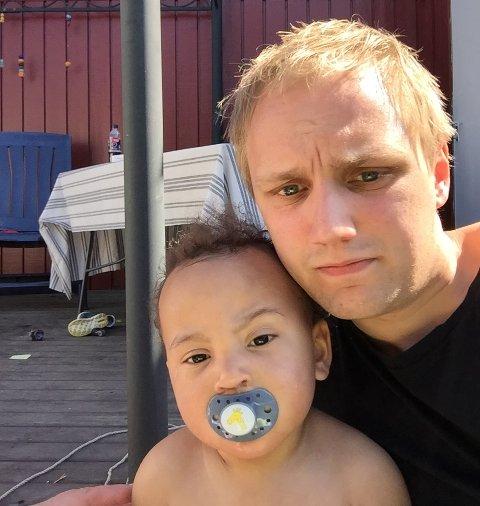 Luca Martin Løvold (1,5 år) ble mandag morgen bitt av en hund da han satt på gressplenen hjemme hos familien. Nå håper faren Sigmund Lyngmo at de finner hundeeieren.