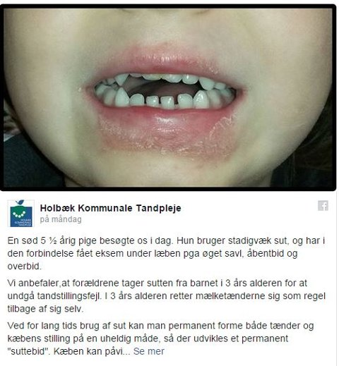 ADVARER: Dette la en en kommunal tannlege i Danmark ut på Facebook for å vise hva som kan skje med barn hvis de brker smokk lenge. Bildet har fått mye oppmerksomhet, også i Norge.