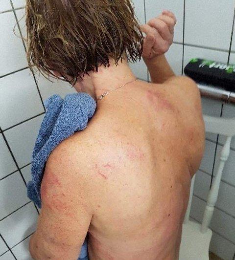 MERKER OVER HELE KROPPEN: Åse Turid Bergsjøbrenden har merker over hele kroppen etter det farlige møtet med de sinte dyrene