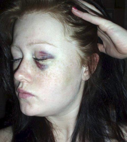 Dette bildet ble tatt rett etter at Cathrine Flåtten ble utsatt for en voldsepisode på Nittedal stasjon i 2009. Politiet bekrefter hendelsen. – Jeg sliter fortsatt med sosial angst etter det som skjedde, forteller hun. FOTO: PRIVAT