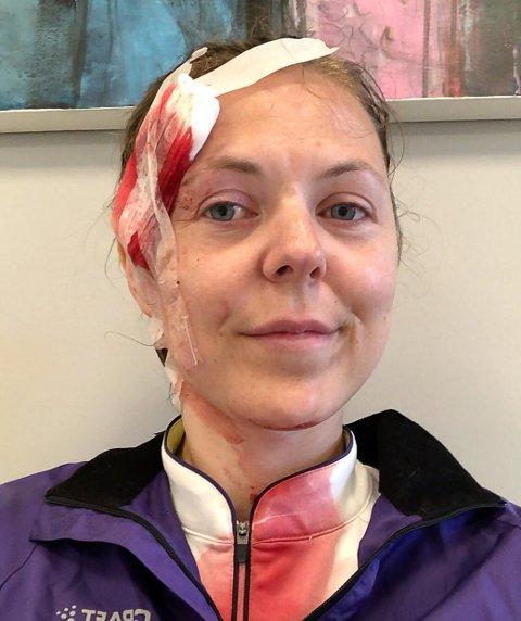 TAKKER: Elise Landsem husker ikke helt hva som skjedde da hun veltet på sykkelen, men vil på denne måten takke alle som hjalp henne.