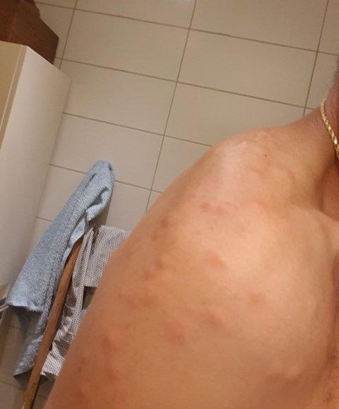 REAKSJON: Søndag kveld begynte kroppen å kjempe mot de mange ti-talls stikkene på Jan-Åges rygg.