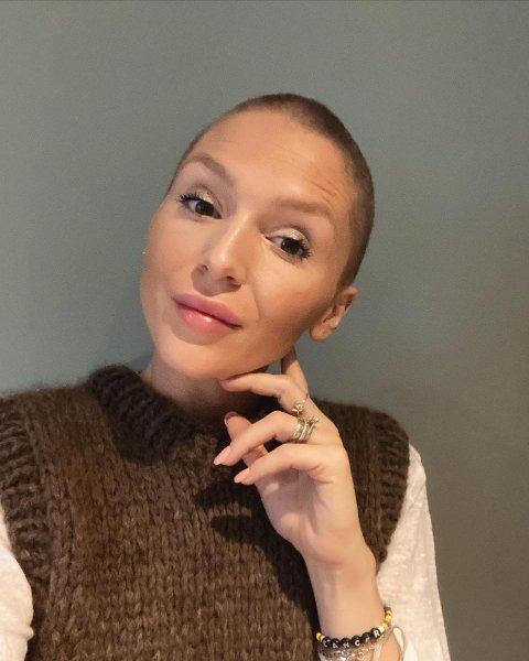 """DELER KAMPEN: Dafina Demaj Kuqi fyller 28 år i oktober og kjemper sin livs kamp. - Det kommer til å gå bra, jeg har en god prognose, sier hun. Kuqi donerte bort håret sitt til organisasjonen """"Children with hair loss""""."""