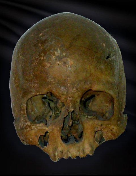 DØDE I HOLMGANG: Hvem var denne karen? Over venstre øye er det et tydelig hakk i kraniet som kan sammenfalle med historien om Gunnlaug Ormstunges brutale død.