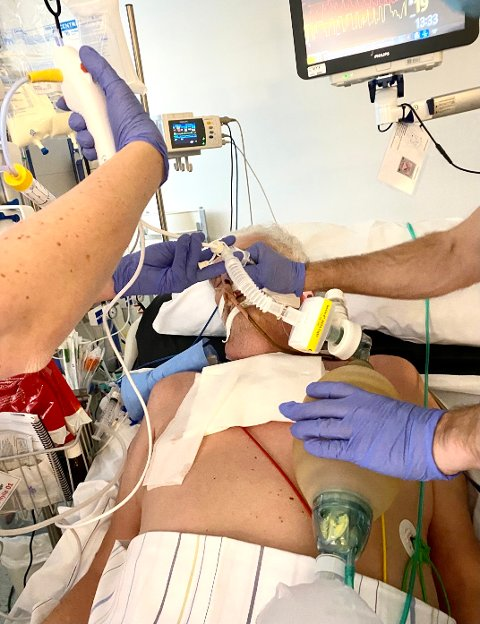 Her får alvorlig syke Jon Ådalen intensivbehandling ved Sykehuset Østfold på Kalnes.