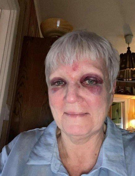 Ann- Helen Fjeldstad Jusnes skulle bare se på uværet. Så ble hun kastet mot rekkverket. Foto: Privat