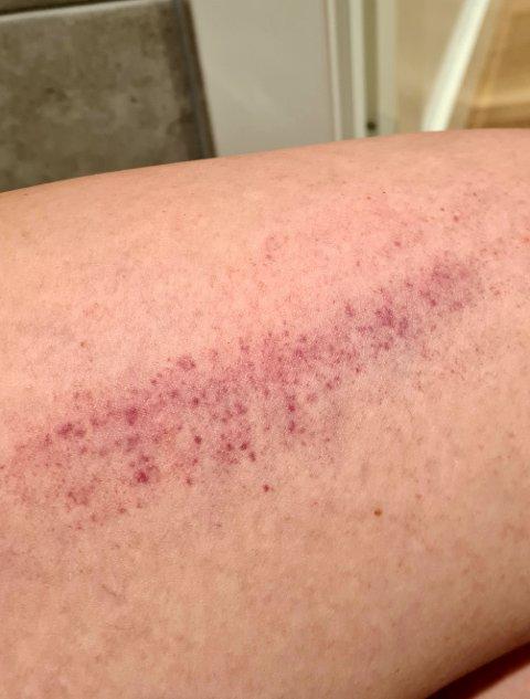 11 DAGER ETTERPÅ: Helsearbeideren fikk plutselig blodutredelser på låret 11 dager etter at hun tok AstraZeneca-vaksinen.
