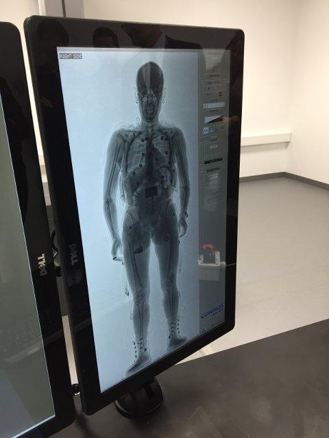 Kroppsskanneren er ment å avdekke smugling skjult i kroppen og er et nyttig kontrollverktøy for tollerne.