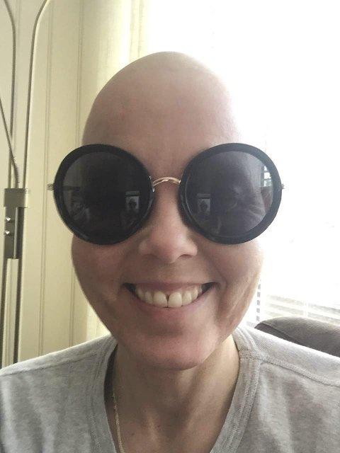 Humor: Wibeke legger ut artige bilder av seg selv uten hår.