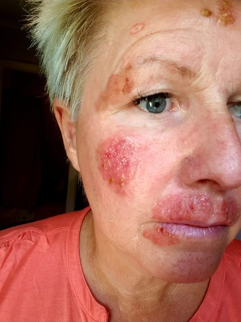 ADVARER: Hege Pettersen har lagt ut bildet av skadene hun har fått som følge av solbrenthet, til skrekk og advarsel for andre.